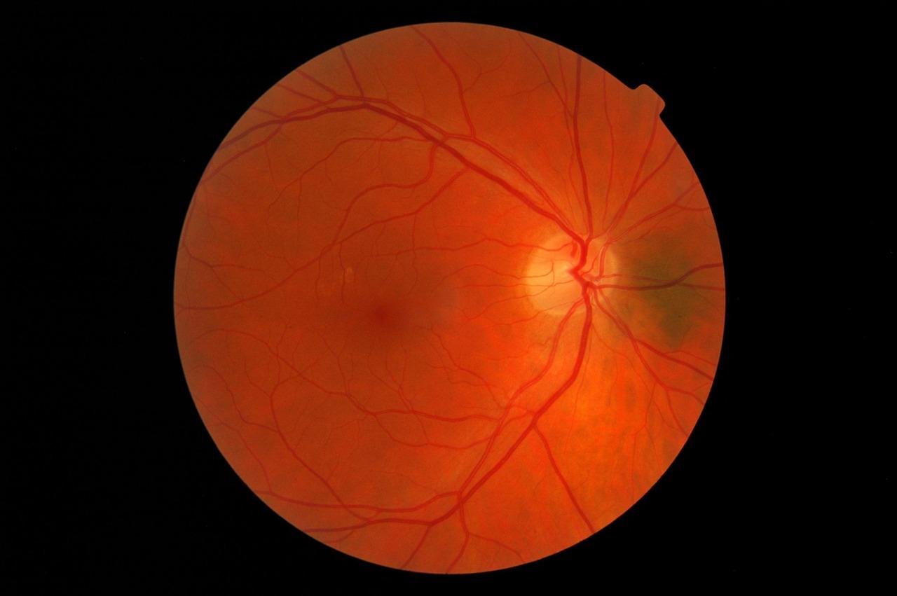 nevus on retina